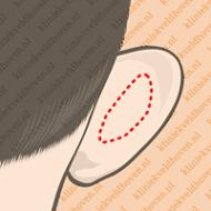 correctie oor